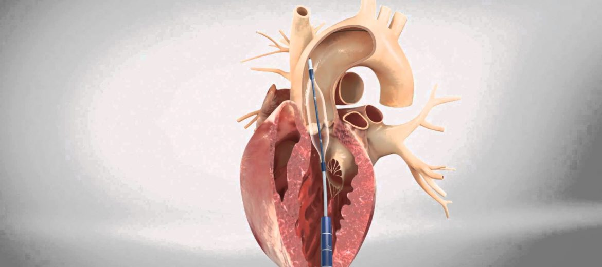 Coarctation Of Aorta together with The Physical Examination in Cardiovascular Disease  The Pulse besides Chicken Anatomy as well 25937 Intestines Gifs besides Heart Die Cut Sticker. on heart anatomy
