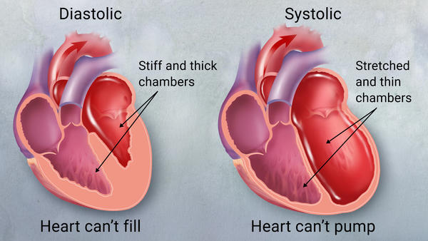 Congestive Heart Failure Explained
