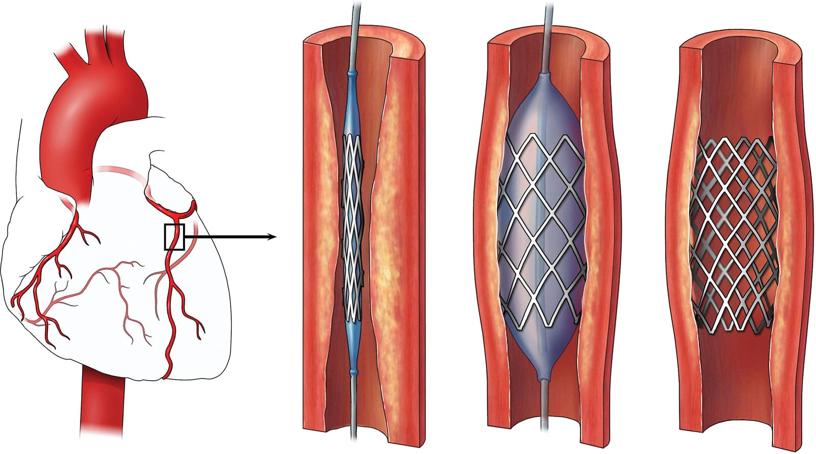 What You Need To Know About A Heart Stent - Central ...