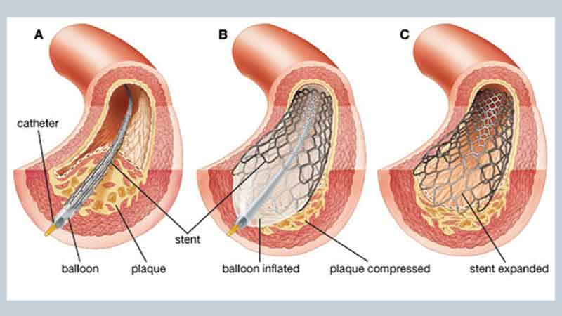 What Is A Coronary Angioplasty? - Central Georgia Heart Center